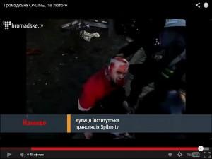 Избитый журналист